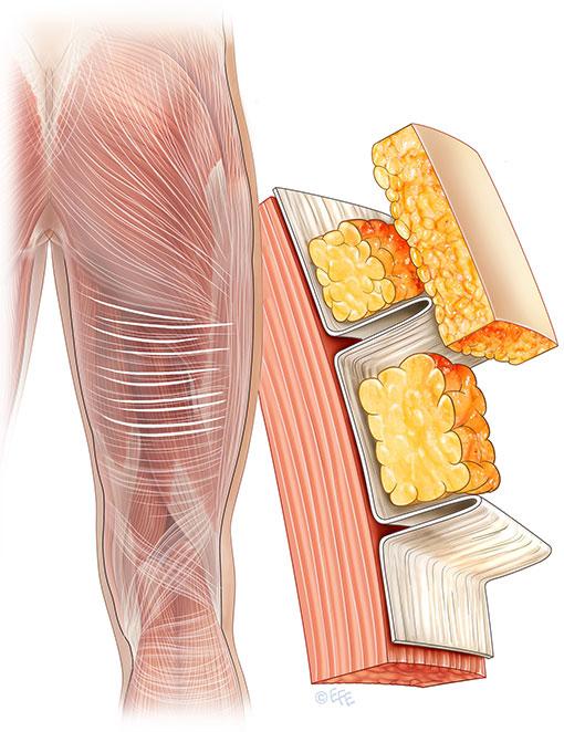 fascial-strains